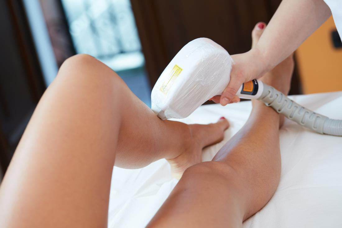 laser-hair-removal-on-legs